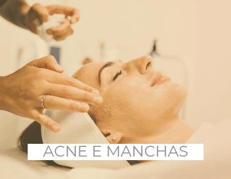tratamentos para acne manchas e melasma drenaclinic lisboa