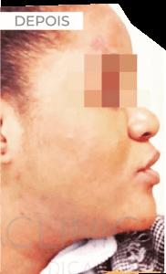 DEPOIS tratamento manchas e acne